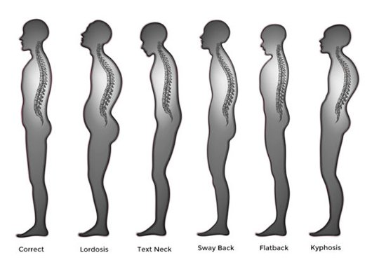 What is Posture Fix